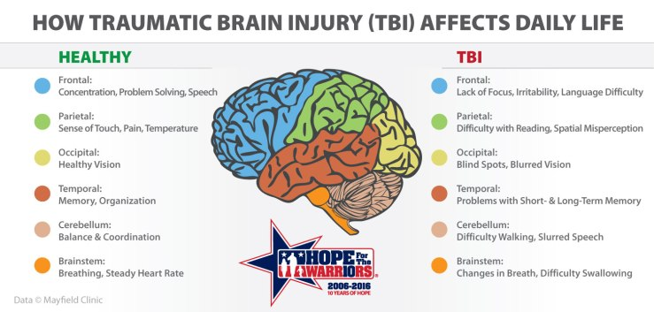 TBI-graphic (5)